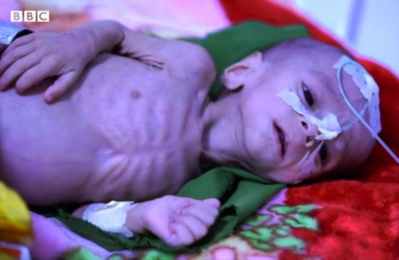 В Афганистане начинается массовый голод